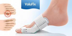 ValuFix – Van-e csontos deformáció a lábán?