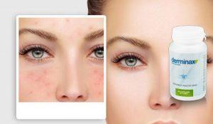 Derminax Felülvizsgálat – Egy új bőrtisztító formula csalán és zsurló kivonatok!
